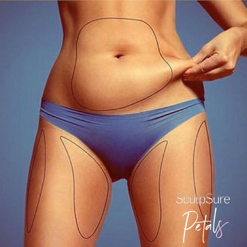 SculpSure 101 – Laser Fat Reduction