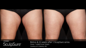 Sculpsure Thighs