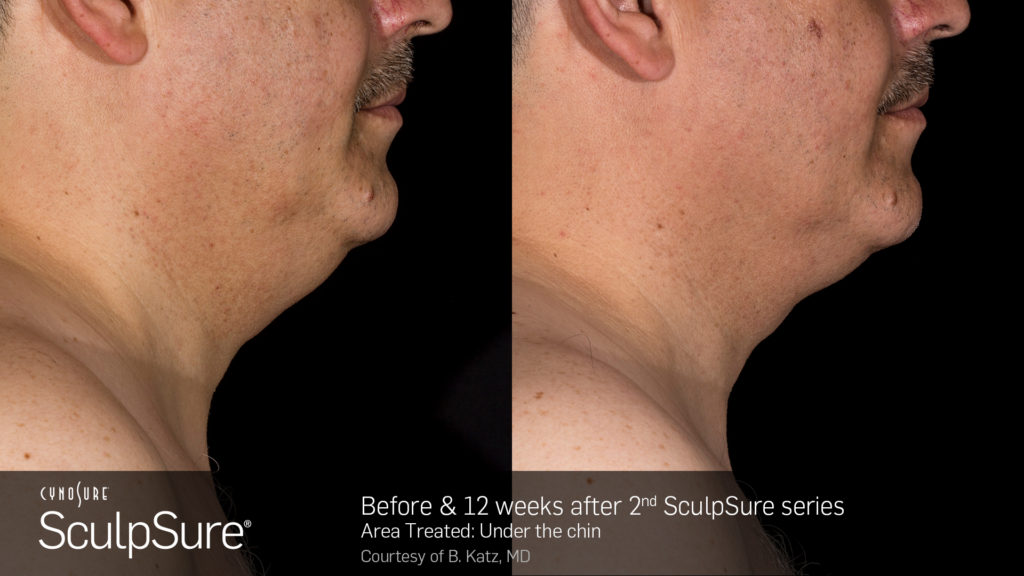 male sculpsure before and after subdermal double chin