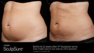 sculpsure before and after results