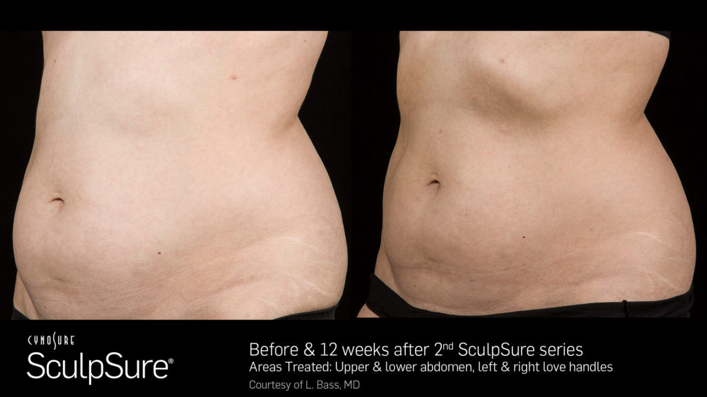 female sculpsure results before and after sculp sure belly fat