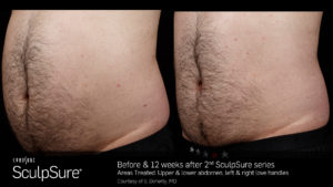 Sculpsure Results Male