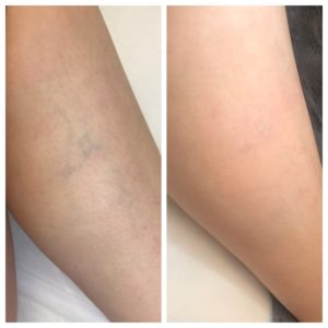 Laser Vein Removal nyc before and after