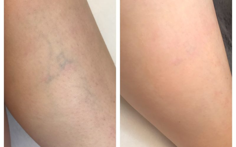 Laser Vein Removal Results