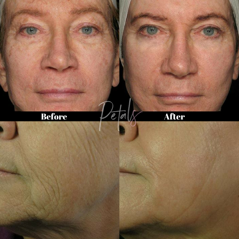 wrinkle reduction treatment icon laser petals laser lounge