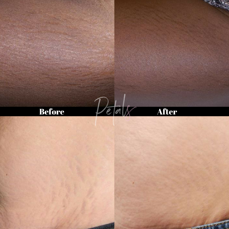 stretch mark reduction icon laser