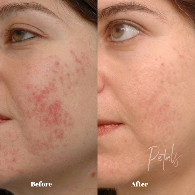 acne scar treatment fraxel petals laser lounge