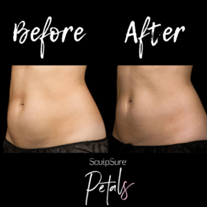 before and after sculpsure abs