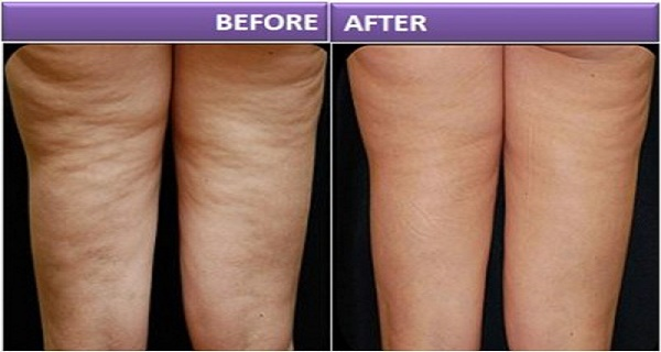 reduce cellulite alma v shape