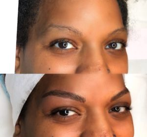 microblading before after dark skin petals laser lounge nyc